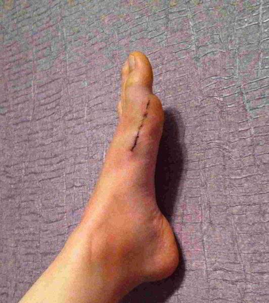 Две недели после операции