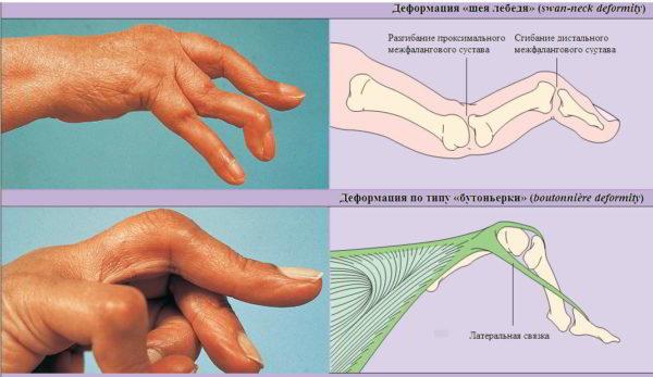 Все что нужно знать о ревматоидном артрите