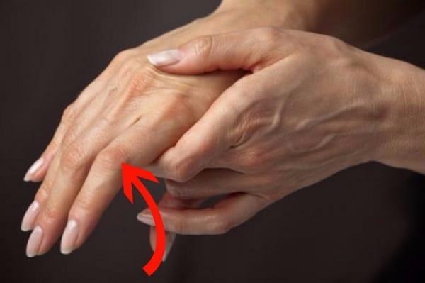 Ревматоидный артрит суставов у женщин