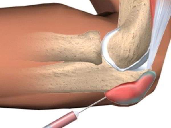 Этиопатогенез тендинита локтевого сустава