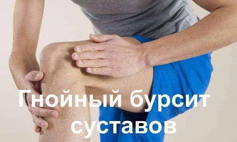 Гнойный бурсит суставов