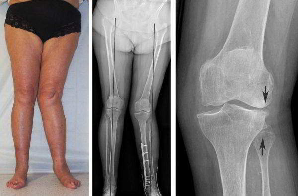 Рентгеновский снимок при гонартрозе