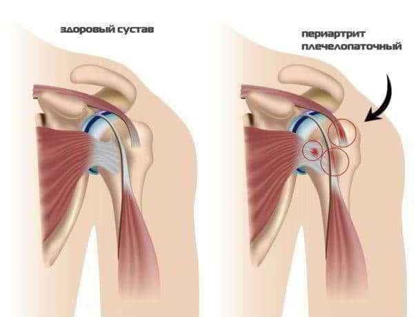 Синовит плечевого сустава