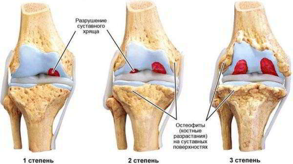Лечение доа 1 степени коленного сустава