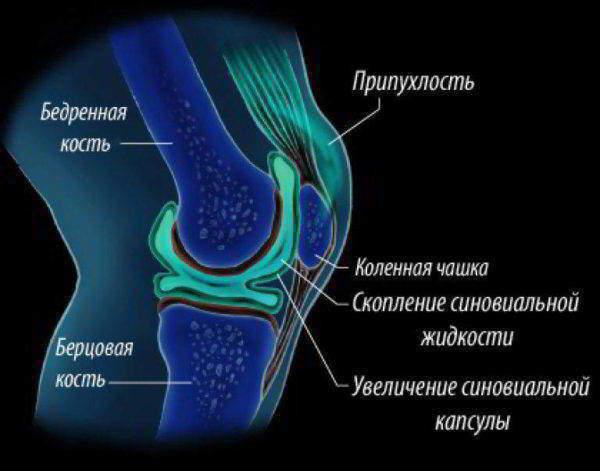 Изображение - Чем опасен синовит коленного сустава Stroenie-kolennogo-sustava-600x471