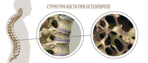 Структура кости