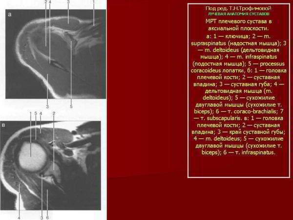 Тендинит сухожилия надкостной мышцы мрт