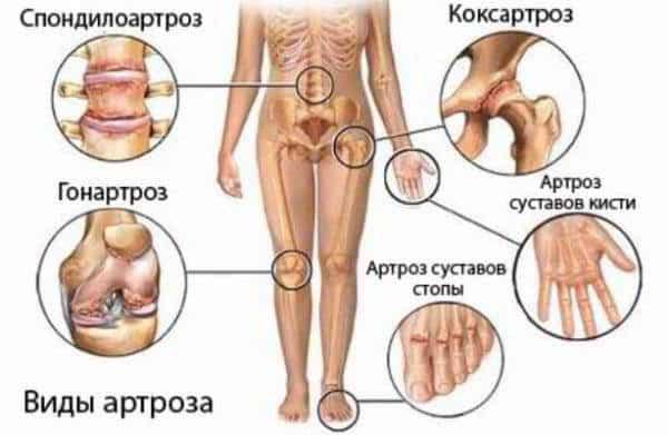 Виды артрозы