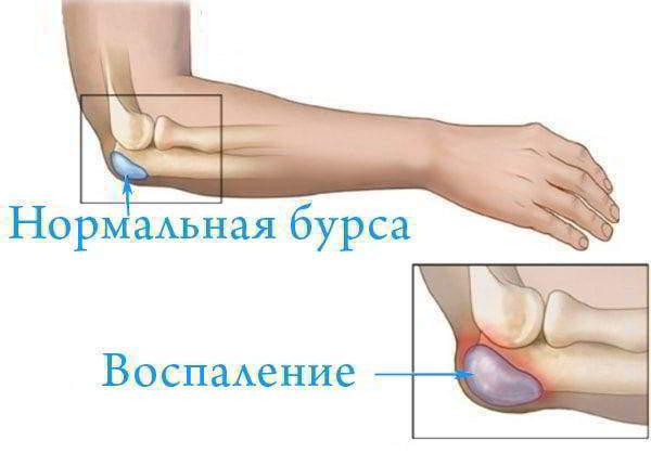 Изображение - Жидкость в локтевом суставе причины Vospalenie-bursi-loktevogo-sustava-600x418