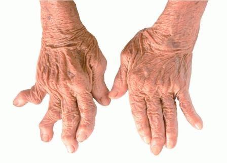 Аллергический полиартрит