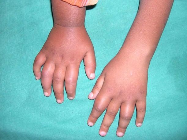 Лечение остеохондроза препаратами и инъекциями