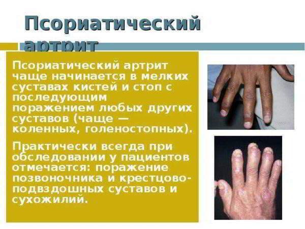 Изображение - Артроз кистевого сустава симптомы artrit-600x450