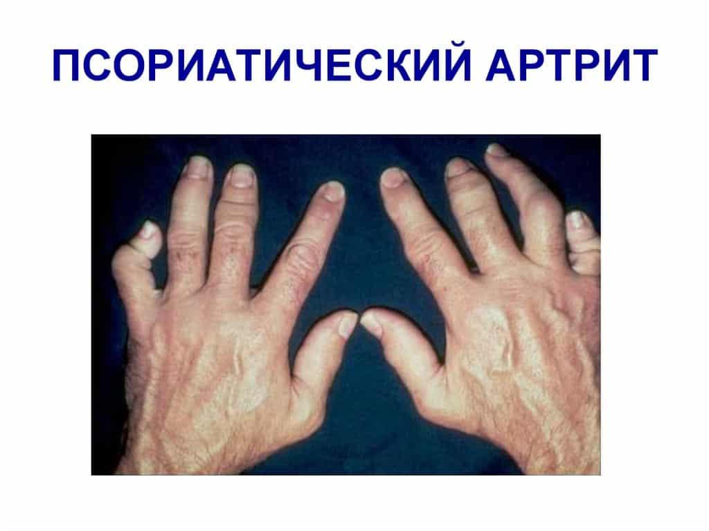Поражение локтевых суставов при псориатическом артрите уколы для смазки коленного сустава