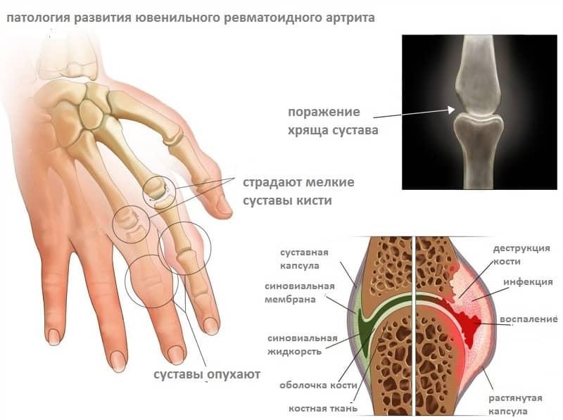 болит и отек коленный сустав что можно сделать