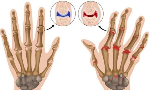 Отзывы больных ревматоидным артритом - Все про суставы