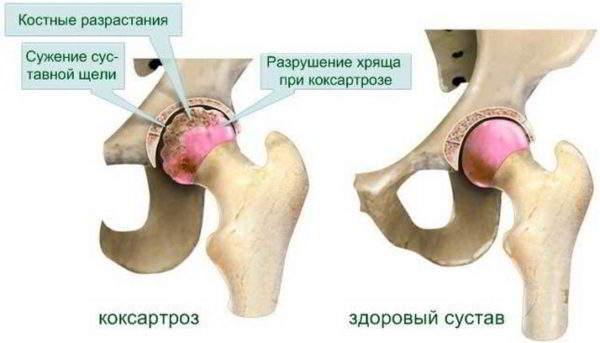 Артропатия тазобедренного сустава