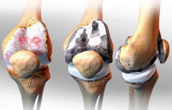 Артропластика с применением вакуумной терапии ран