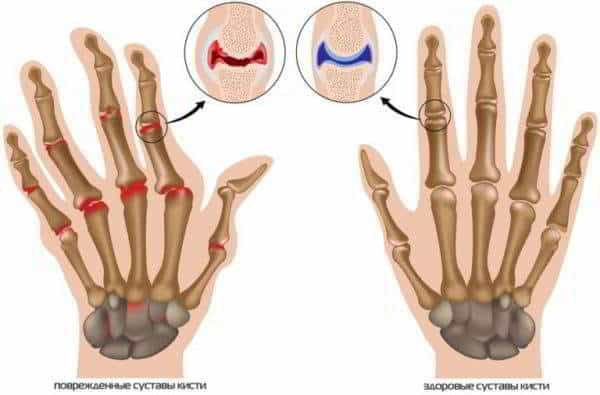 Изображение - Артроз кистевого сустава симптомы artroz-kisti-600x395