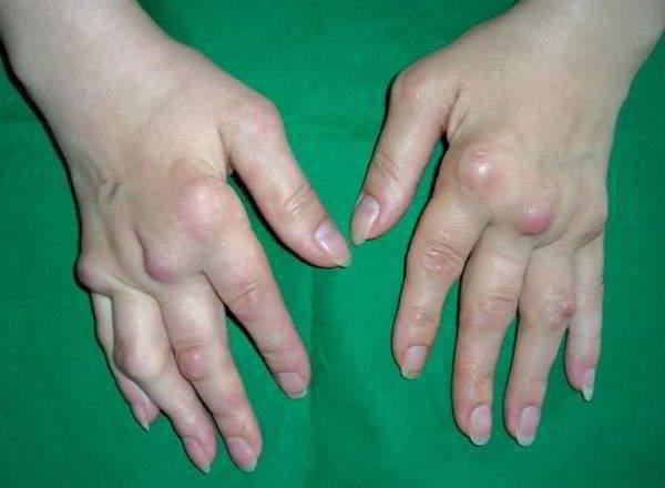 Изображение - Артроз кистевого сустава симптомы artroz-kisti-ruk-600x440