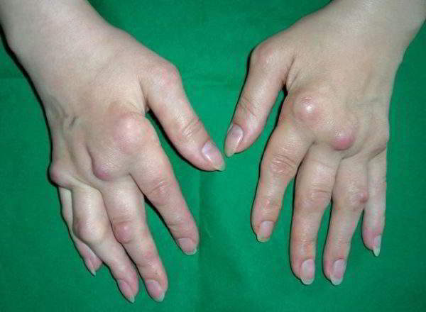 Изображение - Артроз суставов кисти artroz-kisti-ruk-600x440