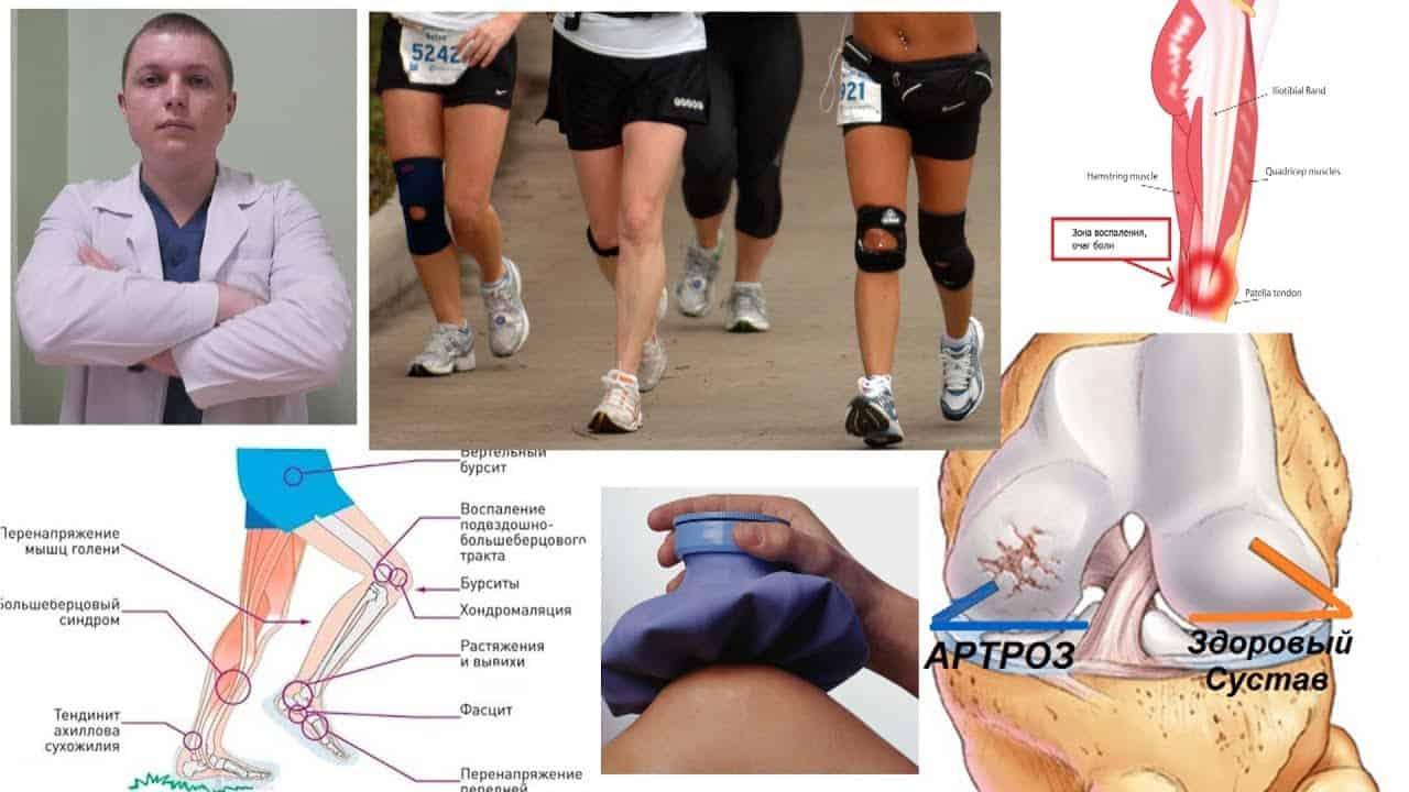 Можно ли заниматься бегом при артрозе голеностопного сустава карбокситерапия при лечении суставов