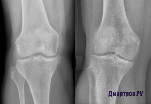 Артроз коленного сустава 1 степени на рентгеновском снимке