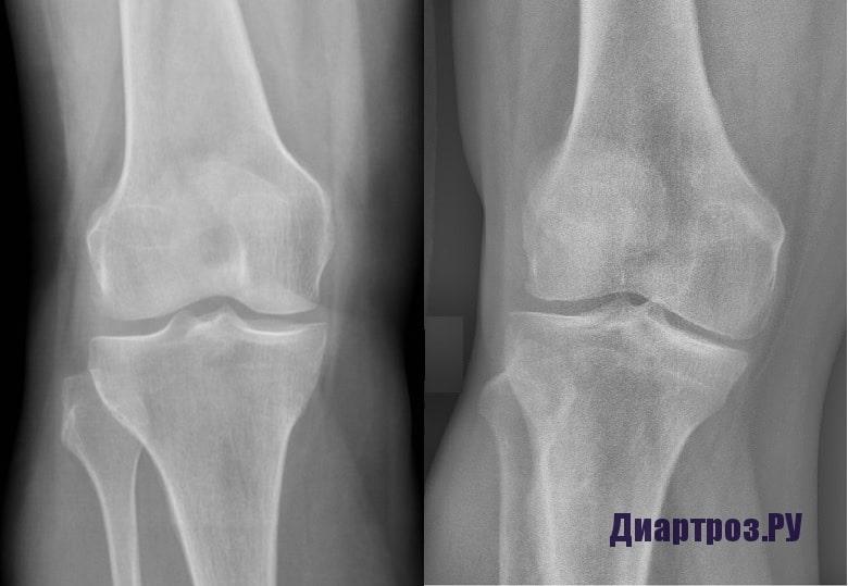 Артроз плечевого сустава 1 степени лечение