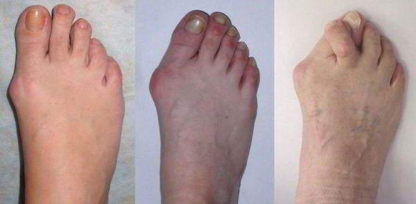 Изображение - Лечение коленных суставов лопухом artroz_772-600x295