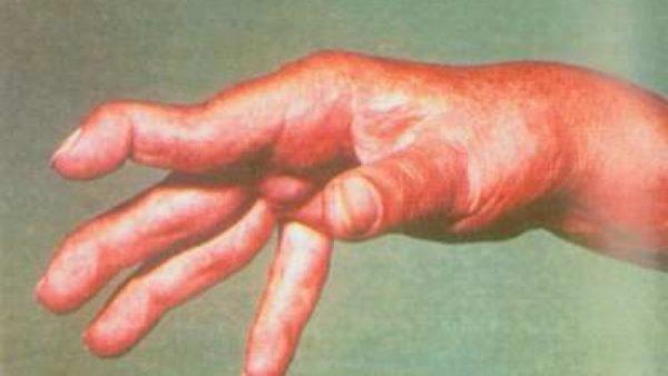 Аутоиммунный (неспецифический) полиартрит