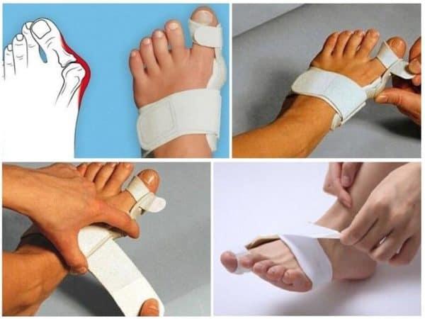 фиксаторы для большого пальца на ноге