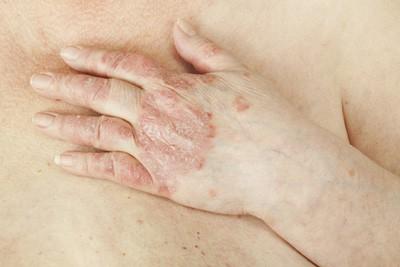 Бимекизумаб помогает при псориатическом артрите