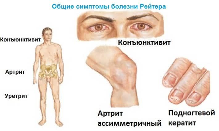 Что будет если не лечить реактивный артрит фото
