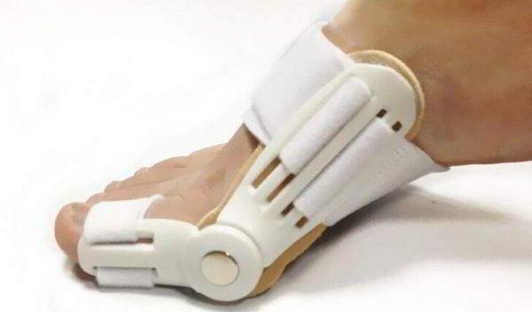 современное лечение бурсита большого пальца