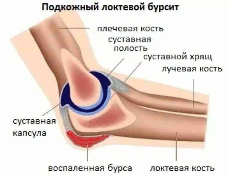 Какие антибиотики назначают при бурсите локтевого сустава фиксатор жесткий на голеностопный сустав