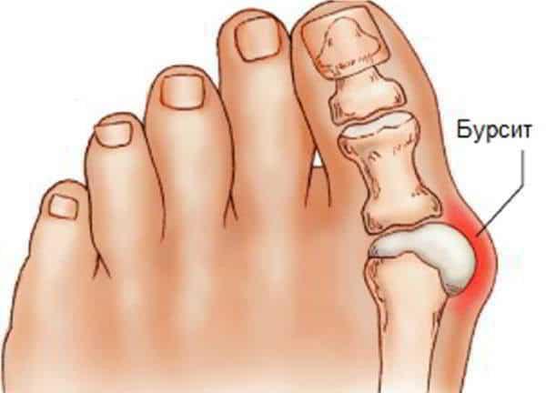 подтягивания отжимания боль в суставах