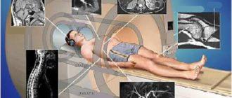 Чем отличается МРТ от ренгтена
