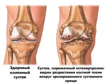 остеоартрит коленного сустава