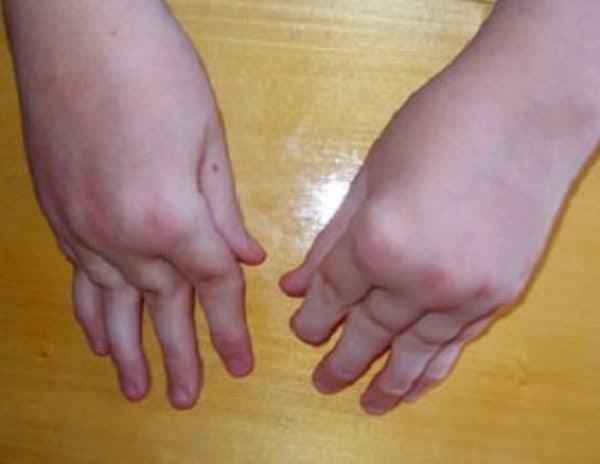 Ревматоидный артрит у детей