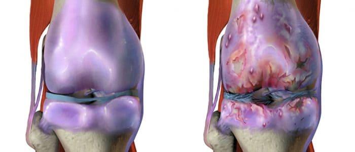 Что такое остеоартрит суставов, его симптомы и лечение