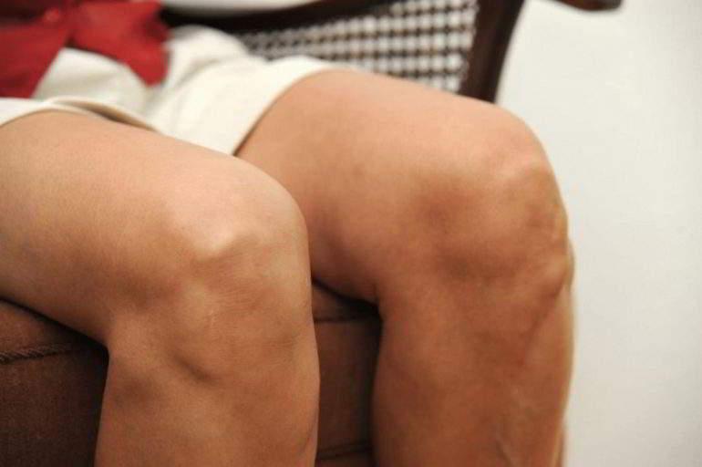 Двусторонний гонартроз 2 степени коленного сустава