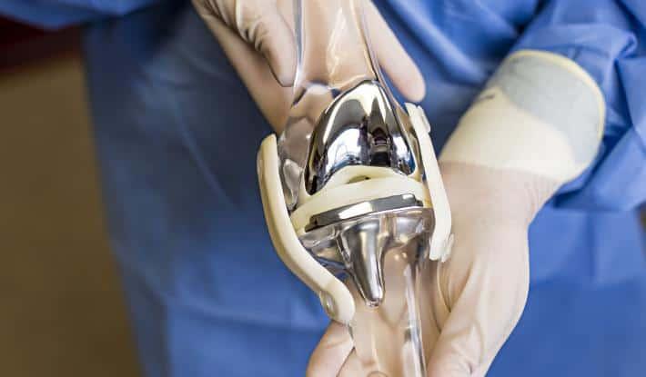 Эндопротезирование коленного сустава и реабилитация после