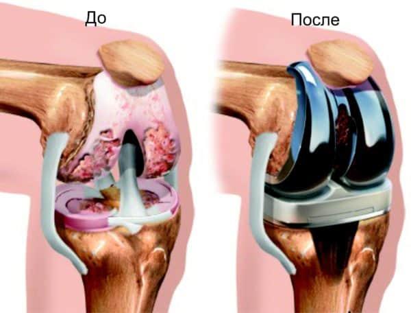 Эндопротезирование коленных суставов