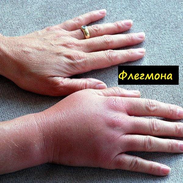 Флегмона кисти руки