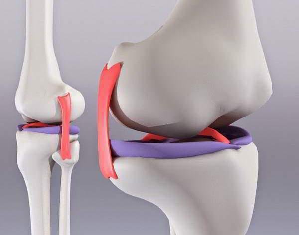 Изображение - Как восстановить жидкость в коленном суставе gialorunat