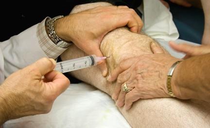 Гиалуроновая кислота с богатой тромбоцитами плазмой эффективна при гонартрозе