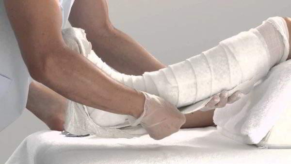 Изображение - Супрапателлярный бурсит коленного сустава лечение gipsovaya-langeta-na-koleno-600x338