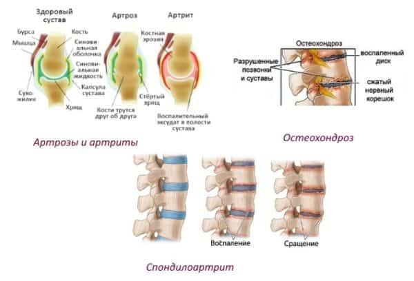 Глюкозамин при артрозе