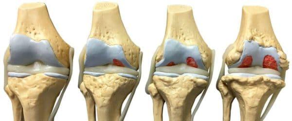 Изображение - Какие структуры сустава поражаются при остеоартрите gonartroz-1-600x250