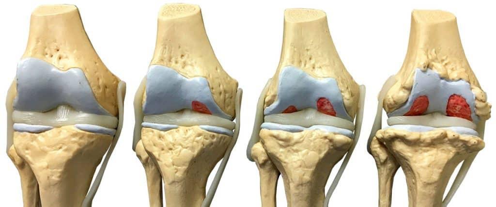 Остеопороз и остеоартроз при эндопротезировании