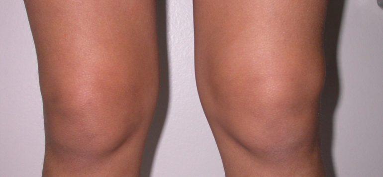 Гонартроз коленного сустава 1, 2, 3 степени – виды, симптомы, современные методы лечения
